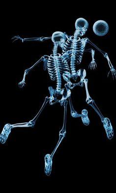 x ray soccer