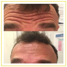 Antiwrinkle injections such as Botox can be used to soften deep, static lines in the forehead. More men are opting for 'Brotox' to help them age gracefully! Performed by Dr. Rahma Targett at Advanced Cosmetic Medicine.
