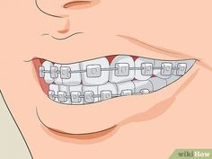 How to Stop Clenching Jaw: 14 Steps (with Pictures) - wikiHow Jaw Clenching Remedies, Jaw Massage, Misaligned Teeth, Warm Compress, Stress Causes, Mouth Guard, Night Time, Give It To Me, Pictures
