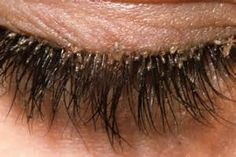 About half of the adults have mites in their eyelashes, claims a study in the Journal of Medical Entomology. They are called eyelash mites and live in the sebaceous glands that are connected to the hair follicles, in our eyelashes and eyebrows. Redness In Eye, Itchy Eyes, Jojoba, Skin Care Regimen, Eyelash Extensions, Eyelashes, Eyebrows, Make Up, Sinus Headache Remedies