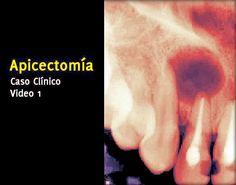 Caso Clínico: Apicectomía (Video 1) | Odonto-TV