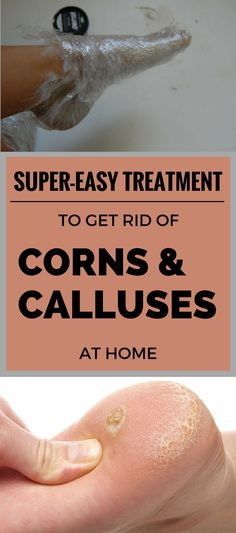 Super-easy treatment to get rid of corns and calluses at home.