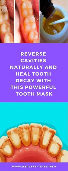Oral Health, Dental Health, Dental Care, Health Care, Teeth Health, What Causes Tooth Decay, Reverse Cavities, Receding Gums, Oral Hygiene
