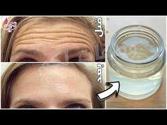 والله مكون عجيب أقوى من البوطوكس مليون مرة🌱أي مكان في وجهك فيه تجاعيد👌 ضعيه وستختفي نهائيا وللأبد - YouTube Wrinkle Remedies, Skin Care Remedies, Beauty Skin, Health And Beauty, Hair Beauty, Dry Hands Remedy, Creepy Skin, Face Care, Body Care