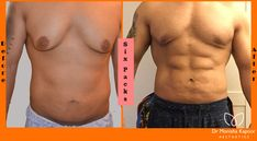 Monisha Kapoor aesthetics is leader in Liposuction for men. We have expertise in ab implants to six pack surgery for men at affordable costs in Delhi. Cosmetic Procedures, Six Pack Abs, Delhi India, Plastic Surgery, Insta Pic, Handsome, Fun, Men
