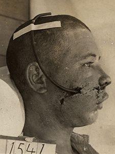 Plastic surgery in WW1- Gunshot wound to the face. - kumc.edu