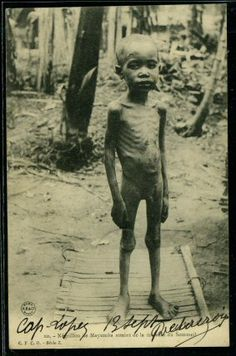 This child in the Congo is dying of sleeping-sickness disease which was common among the forced and tortured laborers of the Congo during European colonialism.