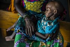 Eighteen-month-old Aishatou is being treated for acute malnutrition at Goré hospital. Her mother, Fatouma, carried her for a month before arriving in Chad on foot two weeks before this photo was taken. Aishatou fell sick with diarrhoea when they arrived at the #CAR-#Chad border. They had barely eaten during the journey and were sleeping in the rough. UNHCR/C.Fohlen/ June 2014