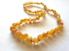 Wearing Baltic Amber can help ease many common discomforts: Arthritis Carpal Tunnel Syndrome Headaches & Migraines Neck & Shoulder Discomfort Tendinitis Joint Pain (Associated with Chemotherapy) Menstrual Cramping Teething Discomfort Sensory Tissues Growing Pains Restless Leg Syndrome TMJ Orthodontic Brace Adjustments