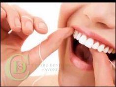 Consigli di Igiene Dentale