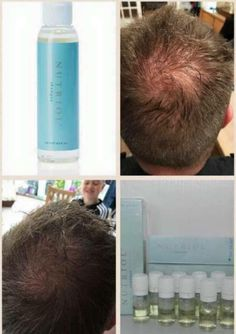 Great results from our nutriol shampoo Nutriol Shampoo, Hair Growth Shampoo, Nu Skin, Ageloc Galvanic Spa, Beauty Guide, Strong Hair, Bad Hair, Anti Aging Skin Care, Hair Loss
