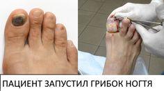 Теперь у любого есть возможность ПОЛНОСТЬЮ избавиться от грибковой инфекции ногтей и стоп