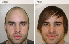 If you want to speed up your hair growth, you need FUE hair transplant services, Reviva is the best platform for completed this treatment very successfully in India.