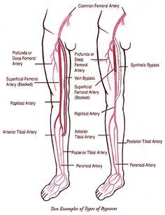 Understanding PAD Chart 22x28   Pinterest   Peripheral artery ...