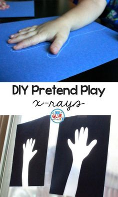 Education While having real x-rays would provide the best experience, that isn't always possible. These DIY pretend play x-rays make a great alternative and provide hours of fun for preschoolers and kindergartners. Doctor Theme Preschool, Body Preschool, Kindergarten Activities, Toddler Activities, Preschool Activities, Space Activities, Healthy Crafts For Preschool, Health Activities, Educational Activities