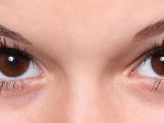 7 Treatments and Lifestyle Changes That Can Help Dry Eyes