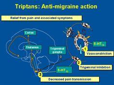 Hvordan Triptaner (virkestoffet i migrenemedisin) virker:  1.) Trekker sammen blodårene 2.) Reduserer aktivitet i Trigeminalnerven 3.) Reduserer overføring av smertesignaler.
