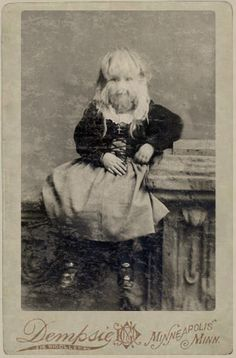 The 'Minnesota Woolly Girl' – Alice Elizabeth Doherty – holds the unique distinction of being the only recorded American to be born with hypertrichosis lanuginosa. A condition exceedingly rare and unusual. Born with a mane of fine and silky blonde hair; she was an American Werewolf. The same disorder as the famous bearded woman. The link for this brings you to a page with more information on her.