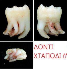 E-Dentistry added a new photo. Dental Humor, Dental Hygiene, Dental Group, Wisdom Teeth, Root Canal, Dental Assistant, Medical, Tooth, Health