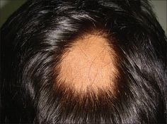 Alopecia areata is a non-scarring alopecia that can present as patches of hair loss (areata, AA), complete scalphair loss (totalis, AT) or complete scalp and body hair loss (universalis, AU) @ http://www.omicsgroup.org/journals/methotrexate-treatment-for-alopecia-areata-with-greater-than-50involvement-21670951-1000138.php?aid=64401