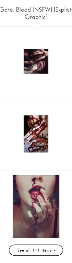 """""""Gore, Blood [NSFW] [Explicit Graphic]"""" by jerana97 ❤ liked on Polyvore featuring blood, bruise, wounds, backgrounds, pictures, images, home, home decor, wall art and wound"""