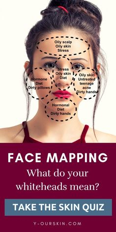 Face mapping - What do your whiteheads means? Take our skin quiz to discover the best skin care ritual based on your skin ty… Face mapping - What do your whiteheads means? Take our skin quiz to discover the best skin care ritual based on your skin ty… Look Girl, Up Girl, Skin Tips, Skin Care Tips, Beauty Care, Beauty Skin, Beauty Makeup, Gesicht Mapping, Online Fitness