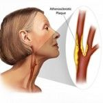Carotid Atherosclerosis Symptoms and Treatment Options - http://www.healtharticles101.com/carotid-atherosclerosis-symptoms-and-treatment-options/#more-18470
