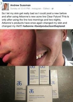 Arbonne NEW Clear Future products. Before and After Results. Used for 2 Mornings and 2 Nights. WOW! Order online at ashleighgulyas.arbonne.com