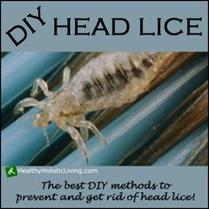 Are you looking for an all natural way to prevent or get rid of head lice? Try these proven DIY Head Lice Treatments