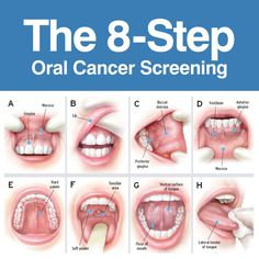April is Oral Cancer Awareness Month.  The survival rate for oral cancer caught early is very good! Make sure your dentist does an oral cancer screen at each exam.  If you use tobacco products and haven't seen a dentist lately, make an appointment today.