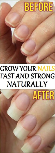 Learn how to make nails grow fast and strong using natural ingredients and at home. In today's article we will show you a remedy that will make your nails grow fast and long. You'll be amazed by the results!