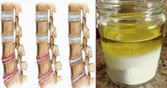 Are you suffering from osteoporosis or Osteochondrosis? Here is a natural remedy that has always been in there in your kitchen that can give you relief from the pain. It will also prevent the pain from returning for the long term. Herbal Remedies, Health Remedies, Home Remedies, Arthritis Remedies, Natural Cures, Natural Healing, Health Tips, Health And Wellness, Health Benefits