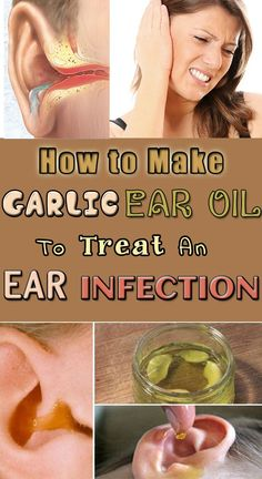 How to Make Garlic Ear Oil to Treat an Ear Infection