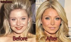 kelly ripa plastic surgery - Google Search Facelift Before And After, Botox Before And After, Kylie Jenner Nose Job, Ariana Grande Nose Job, Beyonce Nose, Jennifer Aniston Nose Job, Plastic Surgery Quotes, Rhinoplasty Surgery, Celebrity Plastic Surgery