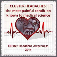 Clusters headaches