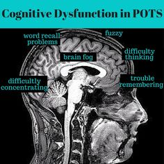"""Cognitive Dysfunction and """"Brain Fog"""" in POTS 