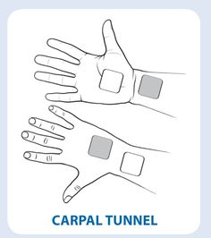 Using a TENS Machine to relieve pain associated with Carpal Tunnel Syndrome - Natures Gate Tens