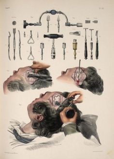 Horrifyingly detailed images of surgical procedures from the early 1800s | Dangerous Minds