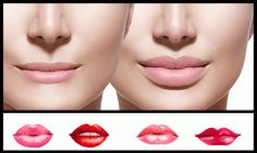 Looking for fuller youthful lips? Lip augmentation with fillers and thread lift improves the appearance of your lips by adding shape, and volume Facial Esthetics, Lip Augmentation, Facial Rejuvenation, Face Wrinkles, Dermal Fillers, Dental, Chicago, Hair Beauty, Lips