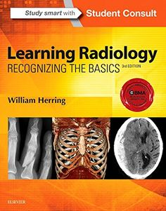 Learning Radiology: Recognizing the Basics, 3e by William... https://www.amazon.com/dp/0323328075/ref=cm_sw_r_pi_dp_x_wHXYyb98KVPNQ