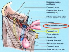femoral canal femoral hernia - Google Search