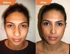 Rhinoplasty New York, Nose Job NYC Surgeon, Septoplasty Sinus Surgery Ethnic Rhinoplasty, Rhinoplasty Surgery, Nose Surgery, Salma Hayek, Nostril Reduction, Plastic Surgery Quotes, Bulbous Nose, Nose Reshaping, Rhinoplasty Before And After