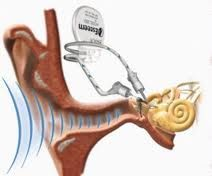 Esteem Totally Implantable #Hearing System represents a breakthrough technology which provides...