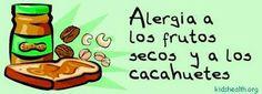 La #alergia a los frutos secos, qué es y cómo tratarla.