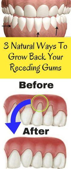 3 Natural Ways To Grow Back Your Receding Gums - Workout Hit