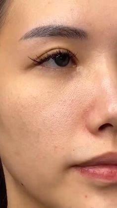 Beauty Tips For Glowing Skin, Clear Skin Tips, Health And Beauty Tips, Beauty Skin, Healthy Skin Care, Face Skin Care, Salicylic Acid, Skin Treatments, Skin Makeup