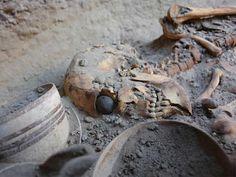 Prótesis ocular antigua en un esqueleto femenino iraní de fecha 2900 y 2800 antes de Cristo. El ojo, tiene un diámetro de 2,5 cm y se compone de un material ligero, probablemente betún de pasta. La superficie está cubierta con una capa delgada de oro, grabado con un círculo central (que representa el iris) y líneas de oro modelados como los rayos del sol. El esqueleto de 1,82 m de altura (6 pies), mucho más alto que las mujeres comunes de la época.