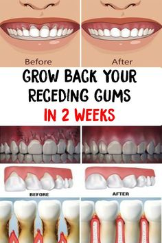 Holistic Health Remedies Grow Back Your Receding Gums In 2 Weeks Poor oral hygiene, resulting in plaque buildup is the primary cause of gum disease. Other factors that can contribute to this problem, include: Gum Health, Teeth Health, Healthy Teeth, Oral Health, Dental Health, Health Care, Tongue Health, Dental Care, Top 10 Home Remedies