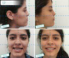 Dra. Nina Contreras (@DraNinacmf) | Twitter Cirugía tipo Osteotomia Le Fort I de avance Todos nuestros tratamientos están encaminados a devolverte la confianza y naturalidad de tu sonrisa.  Agenda tu cita ya y déjanos conocer tu caso: 6571629 - WhatsApp: 3008934528 http://ninacontrerascmf.com/cirugia-oral-y-maxilofacial/
