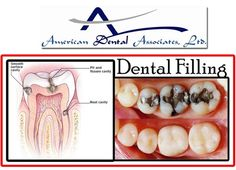Dental Fillings are a common dental problem that used to extend the life of a tooth and protect it. Call on 773-284-1645 or 773-868-9200 and try our INTERACTIVE dental filling procedure.